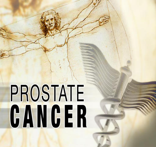 radioterapia per carcinoma prostatico ricorrente