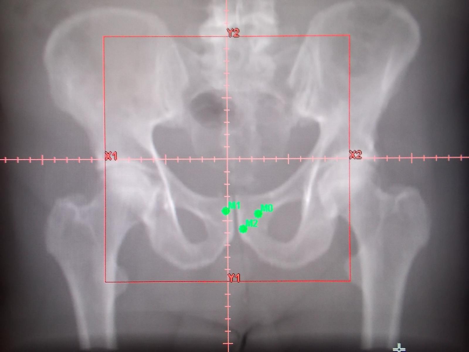centraggio per radioterapia prostata