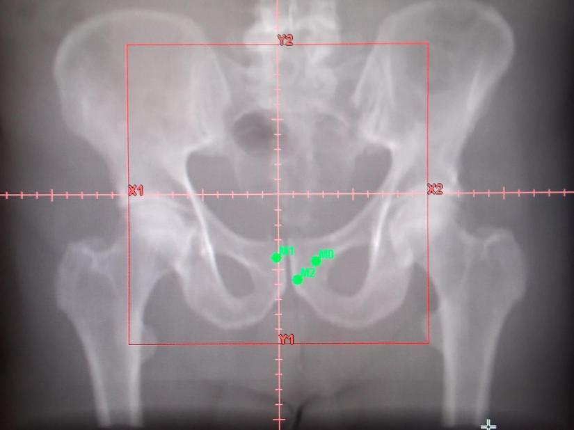 Prostata02_f
