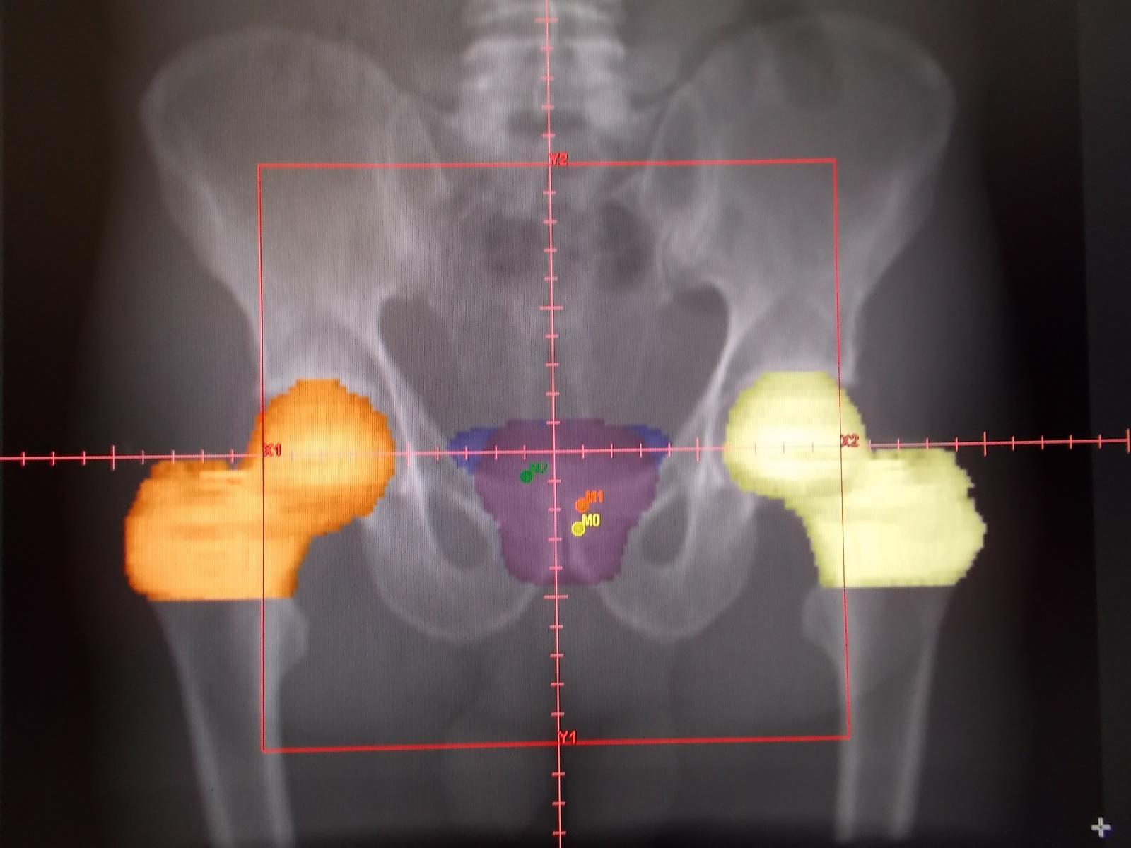 Cina di trattamento della prostata 3d