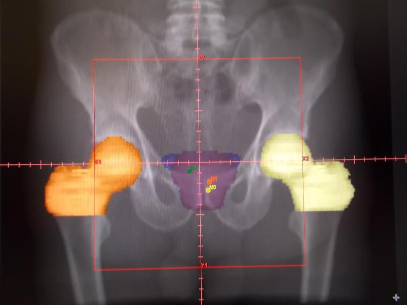 Prostata02_g