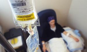 chemioterapia02