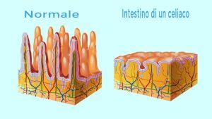 biopsia-celiaquia-celiaco-prueba1-1400x790-68